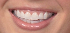 photo of smile