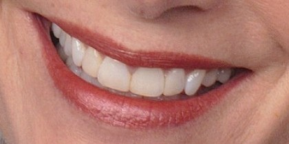 photo of a smile