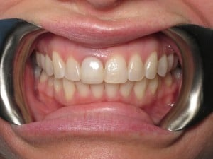 Before photo of dental implant