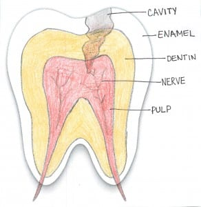 Photo of cavity through layers of tooth