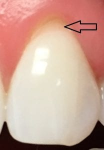 Tooth with recession causing sensitive tooth