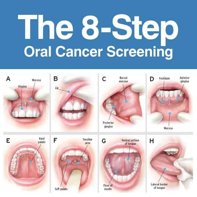 cancer screening process
