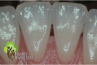 intraoral camera shot of teeth