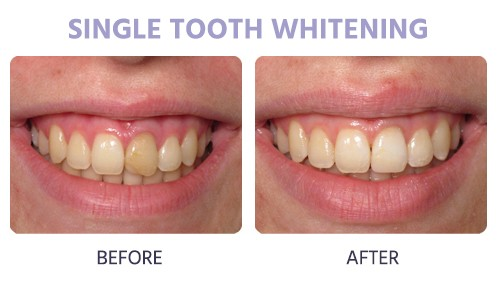 single tooth whitening