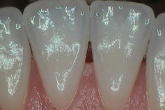back of lower front teeth