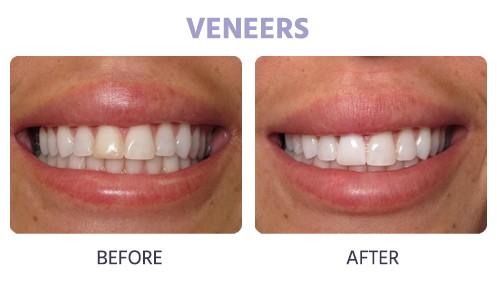 veneers for discoloration