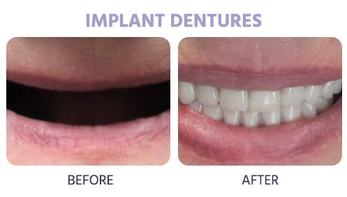 denture implant before and after