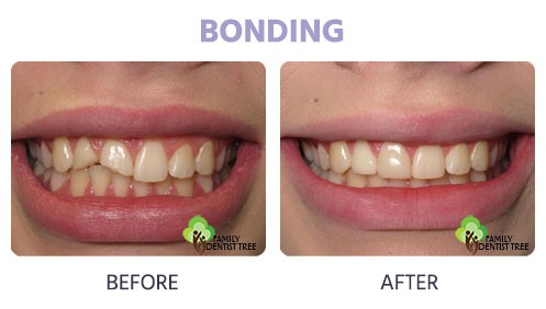 chipped bonding before and after