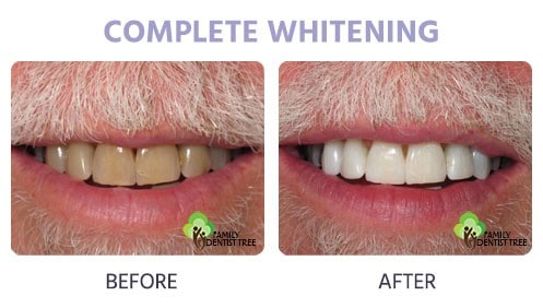 complete whitening before and after