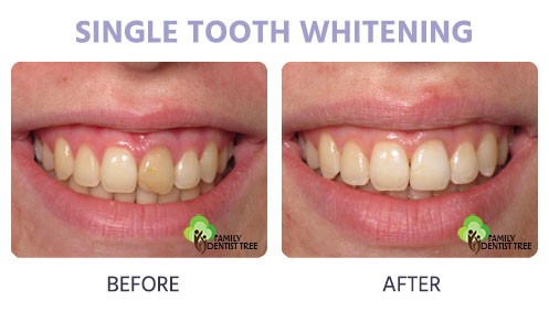 Teeth Whitening Services In Rochester Mn Family Dentist Tree