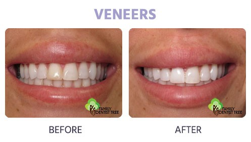 veneers for discoloration
